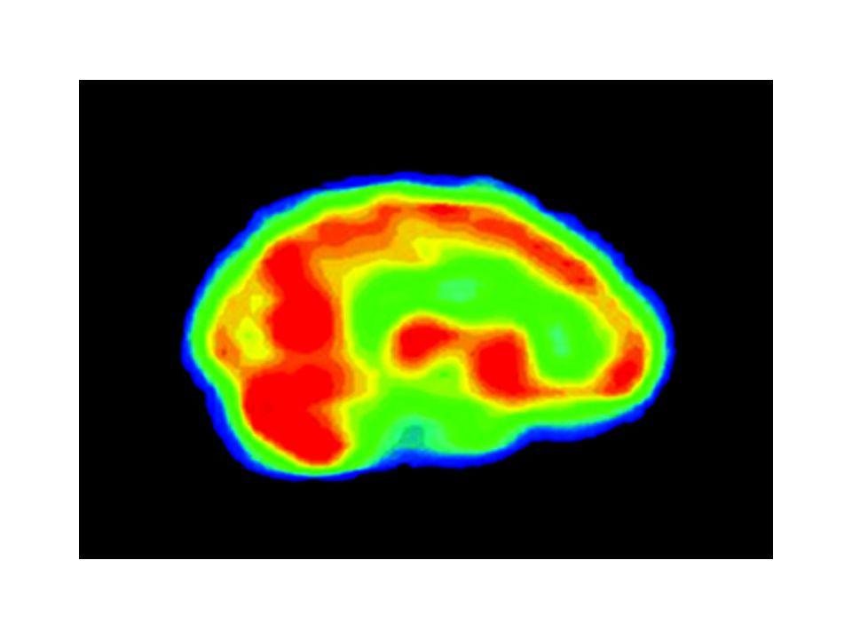 fMRI Functional Magnetic Resonance Imaging Menggunakan detektor magnetik di luar kepala untuk membandingkan jumlah hemoglobin, dengan dan tanpa oksigen, di beberapa area otak yang berbeda Area otak yang paling aktif akan mengkonsumsi oksigen dalam jumlah besar, sehingga mengurangi ikatan oksigen ke dalam hemoglobin di dalam darah