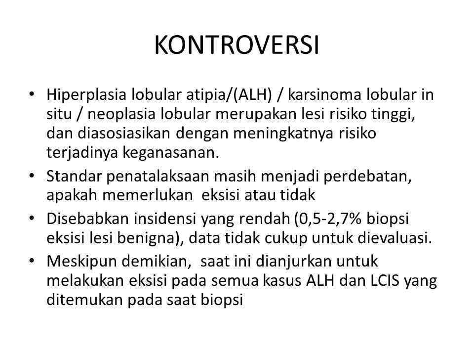 KONTROVERSI Hiperplasia lobular atipia/(ALH) / karsinoma lobular in situ / neoplasia lobular merupakan lesi risiko tinggi, dan diasosiasikan dengan me