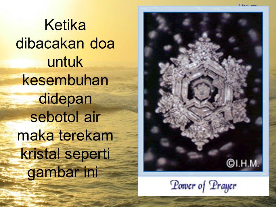 The True Power Water of Ketika dibacakan doa untuk kesembuhan didepan sebotol air maka terekam kristal seperti gambar ini