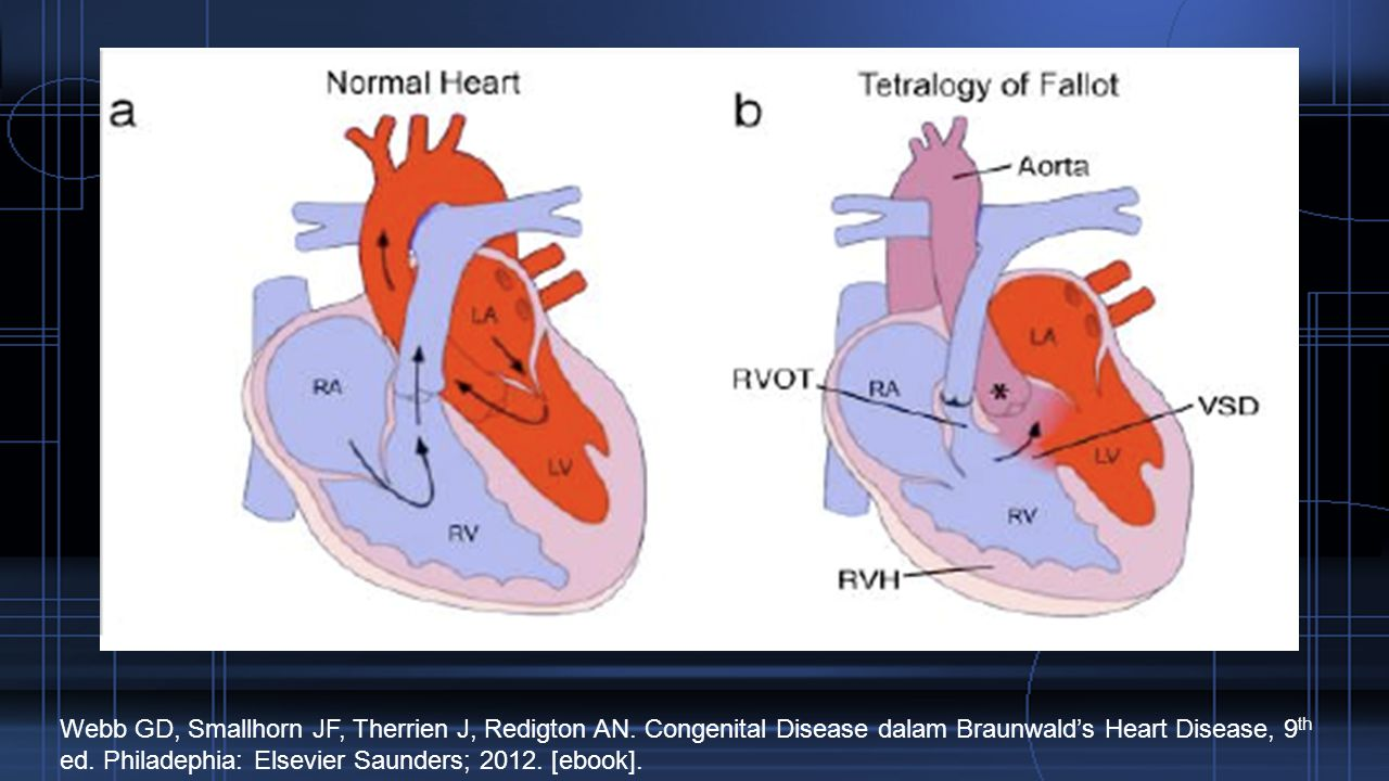 Webb GD, Smallhorn JF, Therrien J, Redigton AN. Congenital Disease dalam Braunwald's Heart Disease, 9 th ed. Philadephia: Elsevier Saunders; 2012. [eb