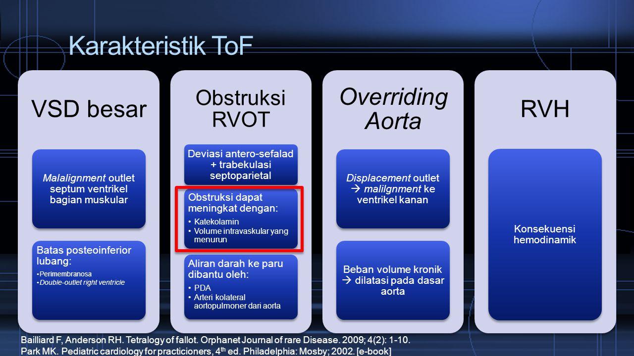 Karakteristik ToF VSD besar Malalignment outlet septum ventrikel bagian muskular Batas posteoinferior lubang: Perimembranosa Double-outlet right ventr