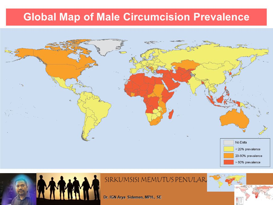 SIRKUMSISI MEMUTUS PENULARAN HIV Dr. IGN Arya Sidemen, MPH., SE Global Map of Male Circumcision Prevalence