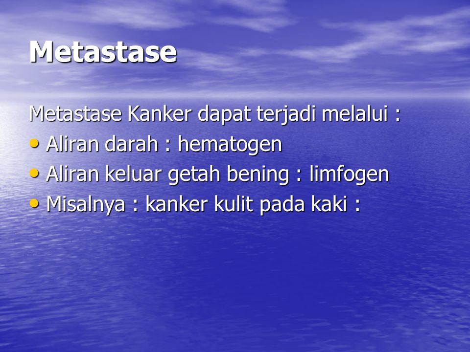 Metastase Metastase Kanker dapat terjadi melalui : Aliran darah : hematogen Aliran darah : hematogen Aliran keluar getah bening : limfogen Aliran kelu