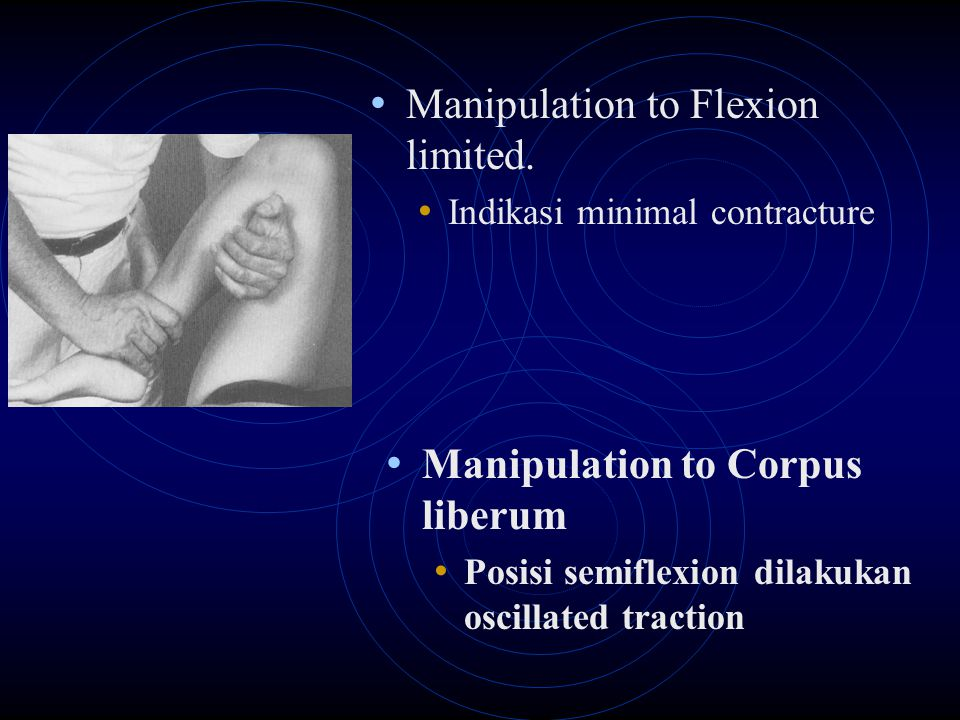 Manipulation to Flexion limited. Indikasi minimal contracture Manipulation to Corpus liberum Posisi semiflexion dilakukan oscillated traction
