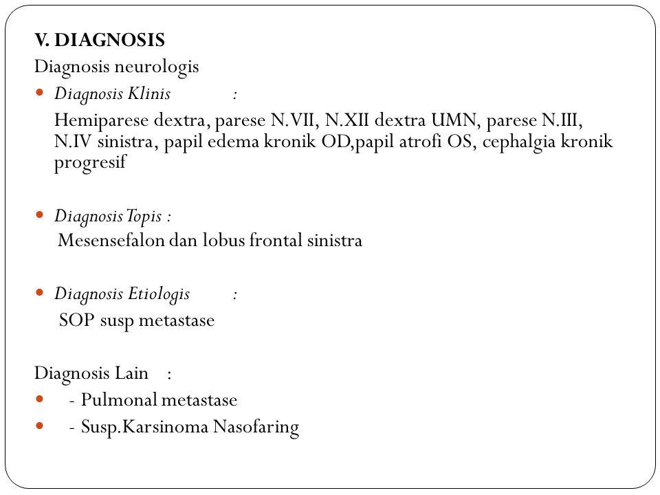 V. DIAGNOSIS Diagnosis neurologis Diagnosis Klinis: Hemiparese dextra, parese N.VII, N.XII dextra UMN, parese N.III, N.IV sinistra, papil edema kronik