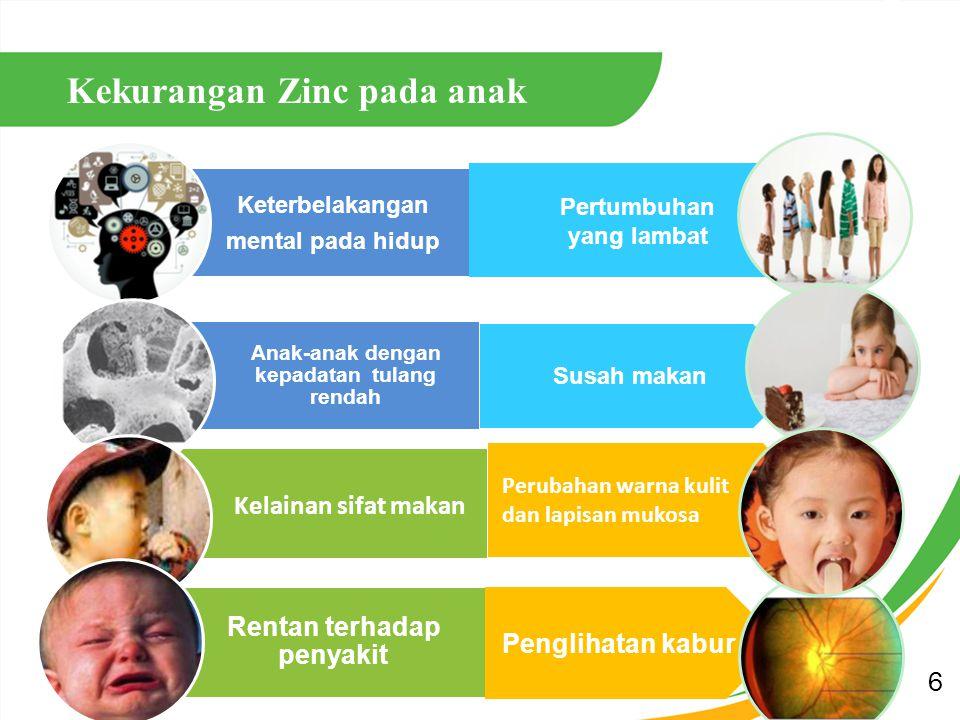 7 Kekurangan Zinc pada laki-laki Mem pengaruhi penglihtan Mem pengaruhi penglihtan Imunitas menurun Imunitas menurun Rambut rontok Rambut rontok Intelegensi berkurang Intelegensi berkurang Infertil Nafsu makan kurang Kerusakan kulit dan selaput mukosa Lama dalam penyembuhan Lama dalam penyembuhan