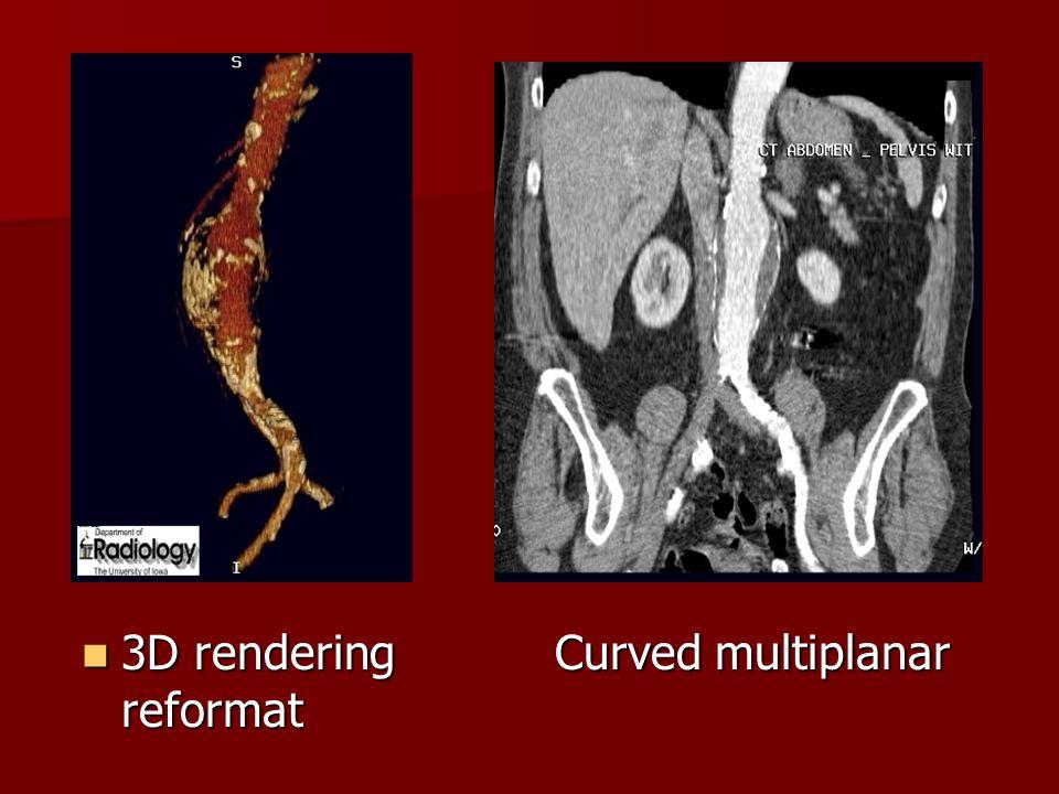 3D rendering Curved multiplanar reformat 3D rendering Curved multiplanar reformat