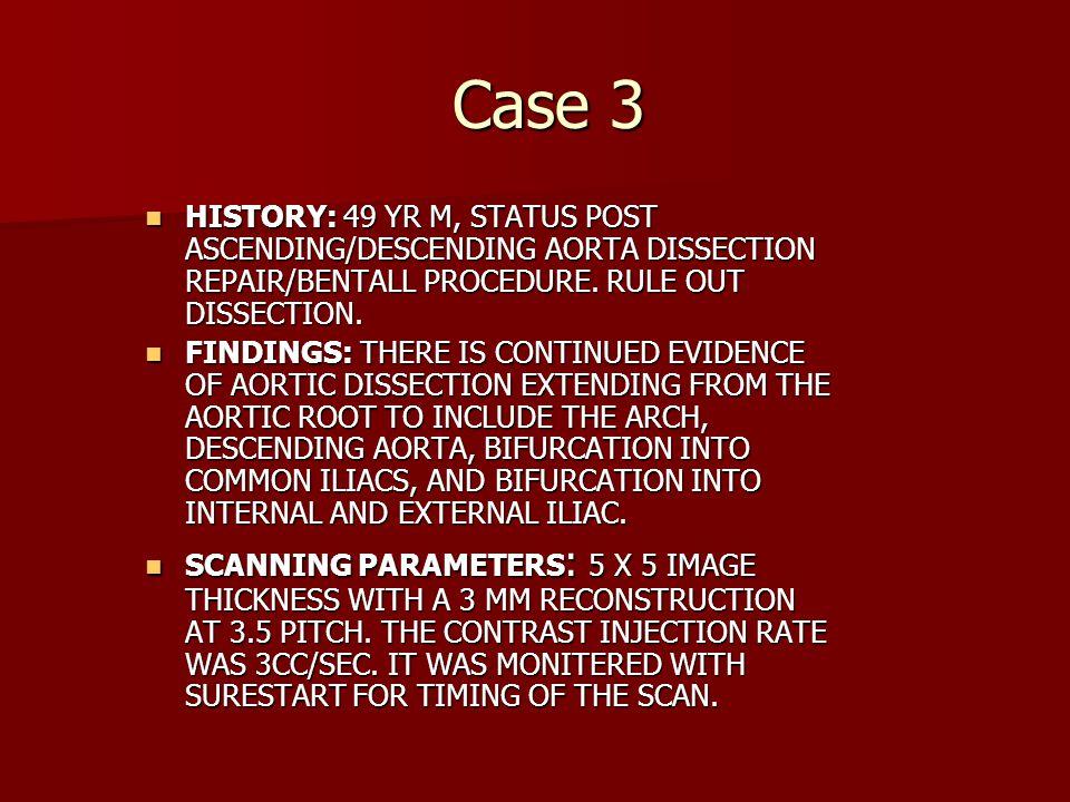 Case 3 HISTORY: 49 YR M, STATUS POST ASCENDING/DESCENDING AORTA DISSECTION REPAIR/BENTALL PROCEDURE. RULE OUT DISSECTION. HISTORY: 49 YR M, STATUS POS