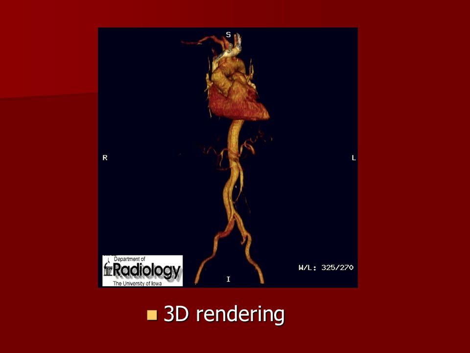 3D rendering 3D rendering