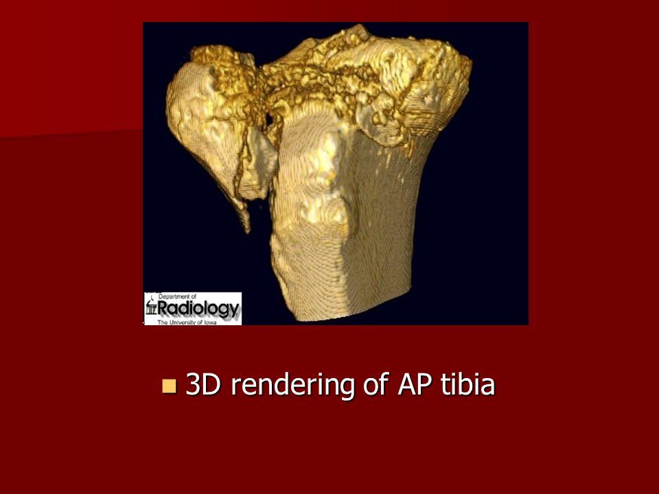 3D rendering of AP tibia 3D rendering of AP tibia