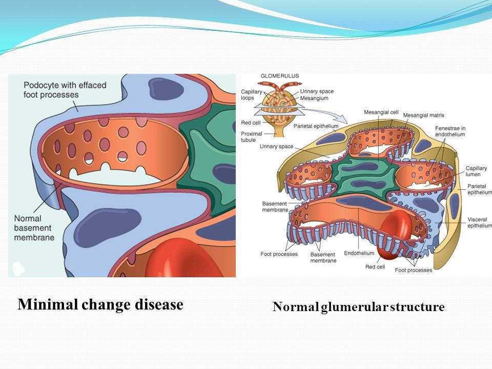 Normal glumerular structure