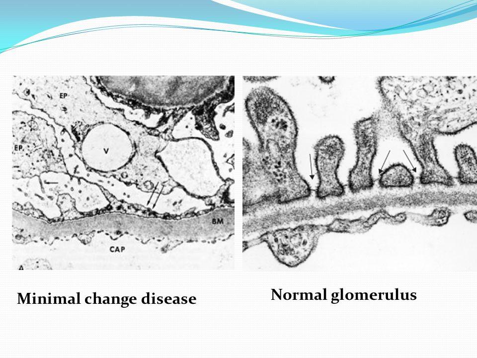 Normal glomerulus Minimal change disease
