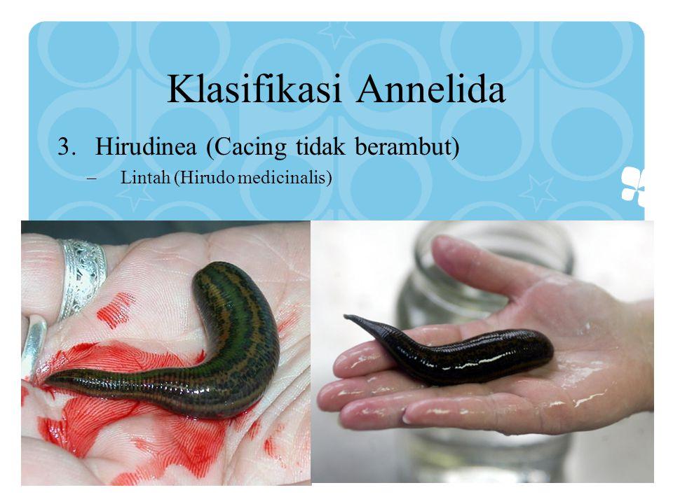 Klasifikasi Annelida 3.Hirudinea (Cacing tidak berambut) –Lintah (Hirudo medicinalis)