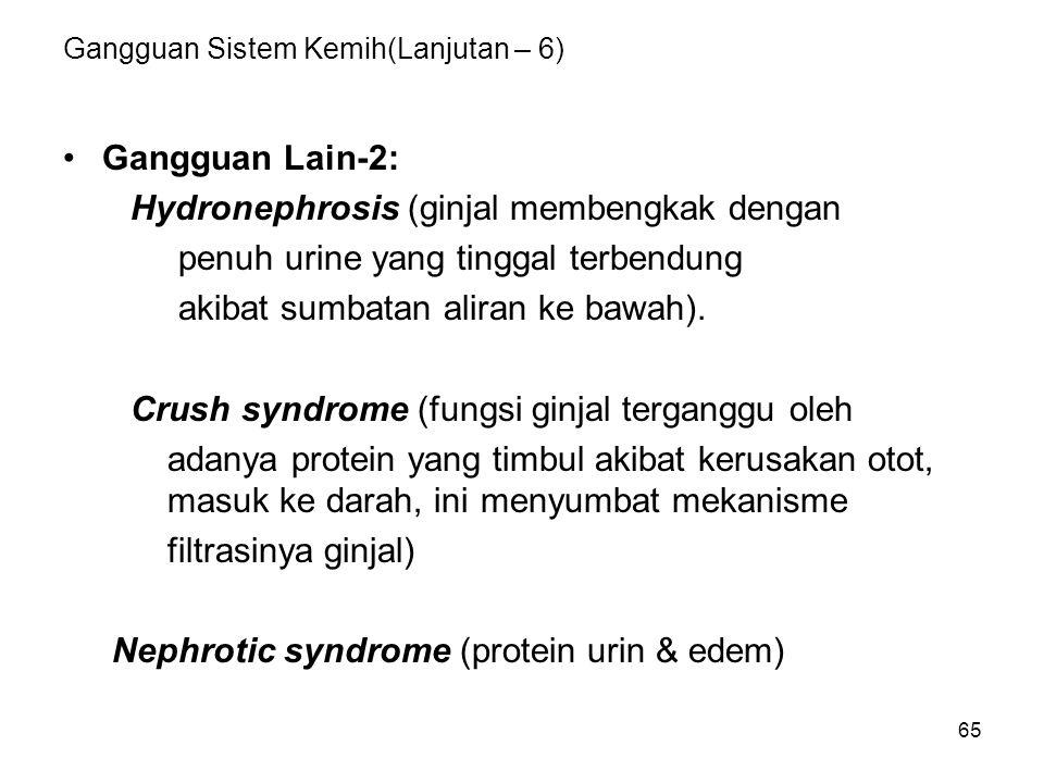 65 Gangguan Sistem Kemih(Lanjutan – 6) Gangguan Lain-2: Hydronephrosis (ginjal membengkak dengan penuh urine yang tinggal terbendung akibat sumbatan a