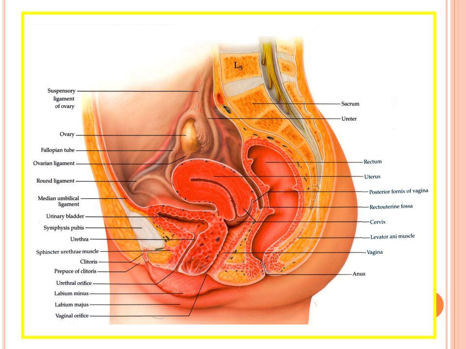 Endometriosis Adanya pertumbuhan jaringan endometrium di luar uterus (ovarium, kavum douglas, ligamen uterosakrum, septum rektrovaginal, kolon sigmoid, ligamen royundum, peritonium pelvik, kandung kemih) termasuk kelenjar dan stroma Gejala utama - Dismenore sekunder - Nyeri defekasi (pada siklus menstruasi, pelvik terasa berat, nyeri menyebar ke paha)