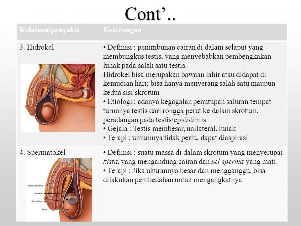 Cont'.. Kelainan/penyakitKeterangan 3. Hidrokel Definisi : penimbunan cairan di dalam selaput yang membungkus testis, yang menyebabkan pembengkakan lu