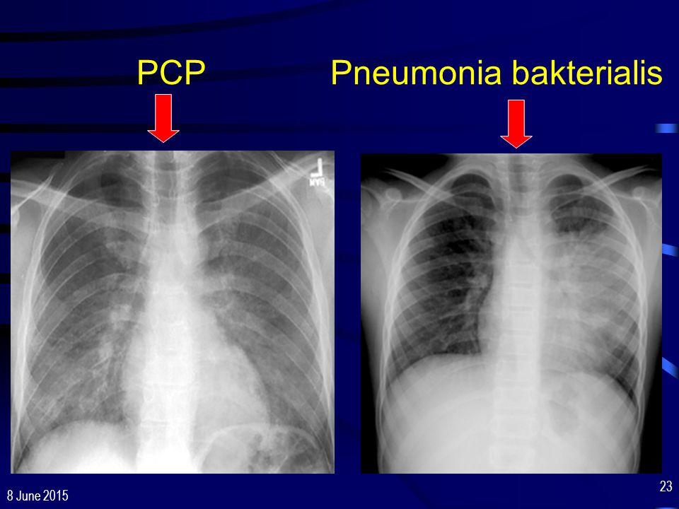 8 June 2015 23 PCP Pneumonia bakterialis