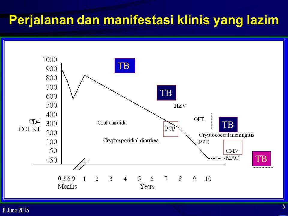 8 June 2015 86 Disseminated MAC: Efek Samping Clarithromycin, azithromycin: mual, muntah, nyeri perut, rasa tdk enak di lidah, peningkatan transaminase, hipersensitifiti –Dosis Clarithromycin >1 g per hari utk terapi MAC berkaitan dgn peningkatan kematian, jangan gunakan –Dosis Rifabutin ≥450 mg/day: meningkatkan risiko interaksi dgn clarithromycin atau inhibitor cytochrome p450 isoenzyme 3A4 lain; meningkatkan risiko uveitis