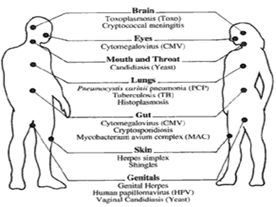 8 June 2015 17 PCP: Diagnosis Gejala klinis (trias), tes darah, radiologi membantu tetapi tdk utk diagnosis –Organisme tdk dapat dibiak Kadar O2 darah ↓: khas, dpt ringan sampai berat (PO2 35 mmHg) LDH >500 mg/dL sering tetapi tdk spesifik