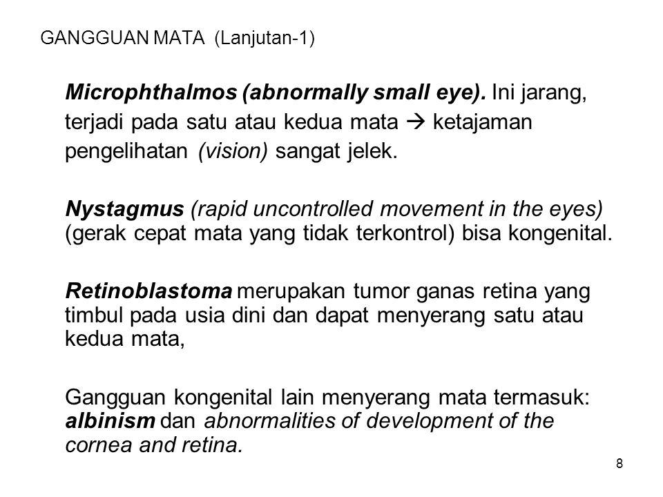 9 GANGGUAN MATA (Lanjutan -2) Infeksi: Conjunctivitis, gangguan terumum dan jarang mempengaruhi vision (visus, pengelihatan).