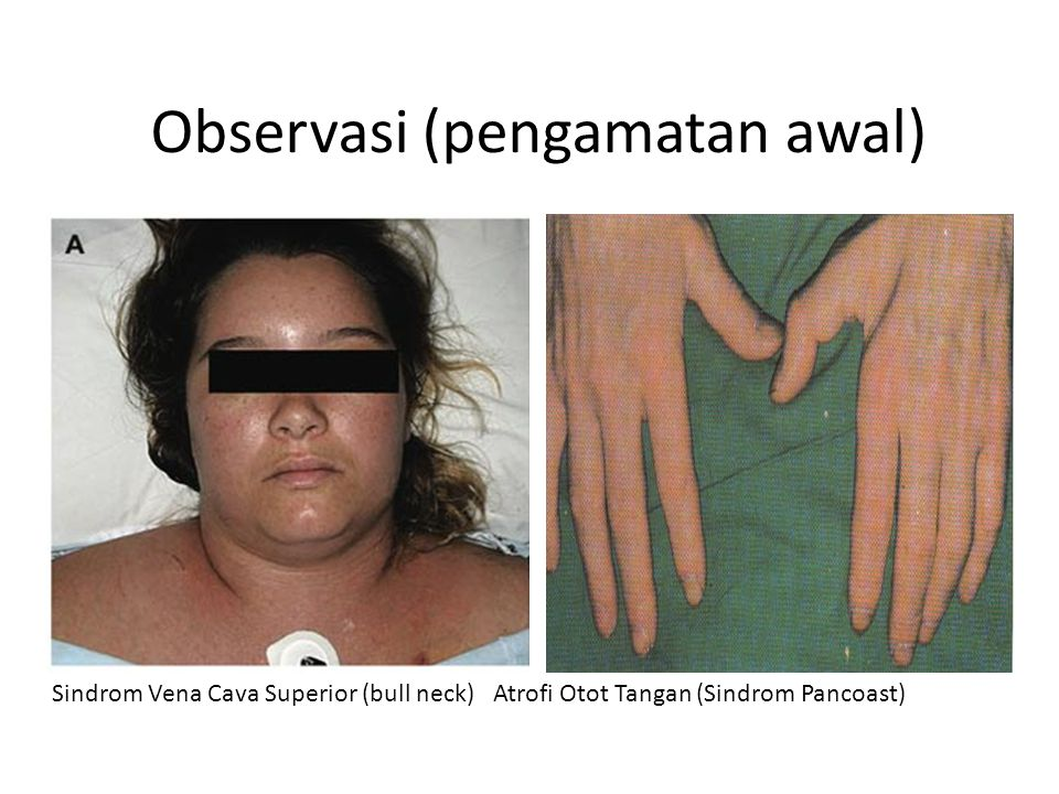 Observasi (pengamatan awal) Sindrom Vena Cava Superior (bull neck) Atrofi Otot Tangan (Sindrom Pancoast)
