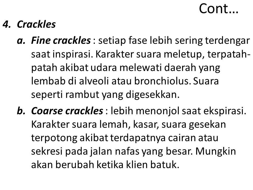 Cont… 4.Crackles a.Fine crackles : setiap fase lebih sering terdengar saat inspirasi.