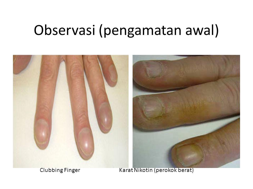 Observasi (pengamatan awal) Clubbing Finger Karat Nikotin (perokok berat)