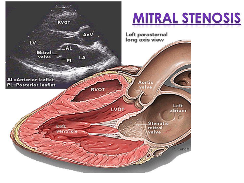 Mitral Stenosis Pendahuluan Definisi : Gangguan pembukaan katup mitral  Obstruksi LV inflow selama fase diastol Normal MV Area: 4-6 cm 2 Transmitral