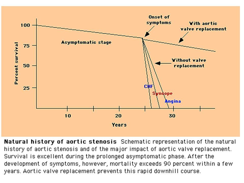 Perjalanan penyakit AS Mild AS  Severe AS: – 8%  10 tahun – 22%  22 tahun – 38%  25 tahun Makin awal adanya keluhan  indikator prognostik jelek