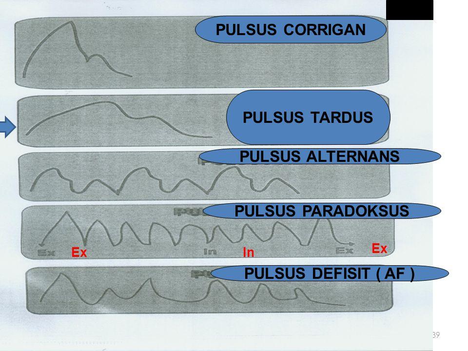 Perabaan Nadi pada AS PULSUS PARVUS - Isi sekuncup (stroke volume) dan isi semenit (cardiac output / curah jantung) yang   Kontur Normal Amplitudo k