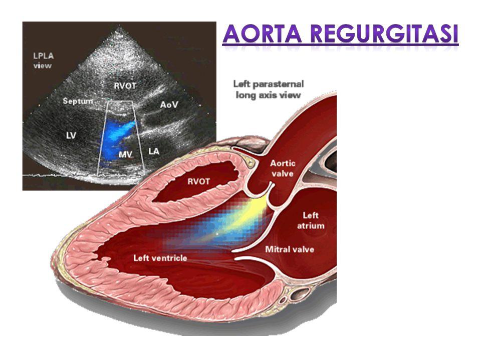 AR adalah gangguan penutupan daun katup aorta saat diastol Terjadi dilatasi dan hipertrofi ventrikel kiri Penyebab : endokarditis infektif, kongenital