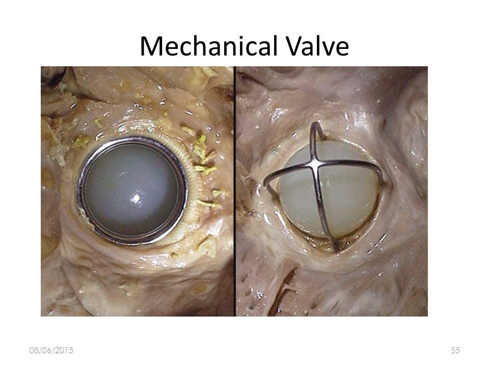 08/06/201554 Mechanical Valve