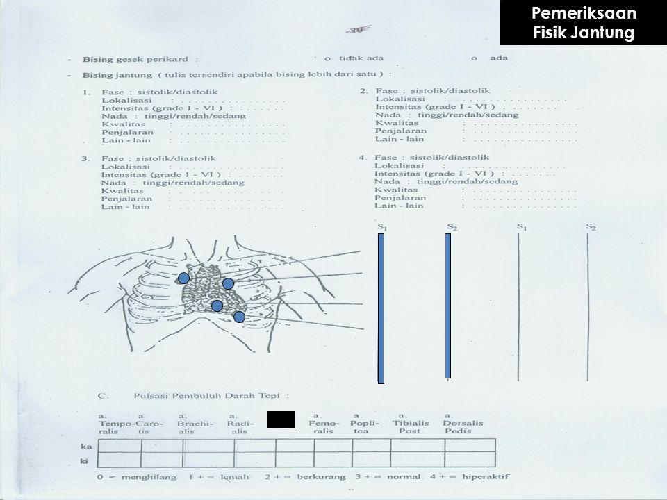 Ada 4 area yang harus mendapat perhatian khusus pada auskultasi RAI II kanan : auskultasi katup Ao RAI II kiri : auskultasi katup Pu RAI IV – V kiri :
