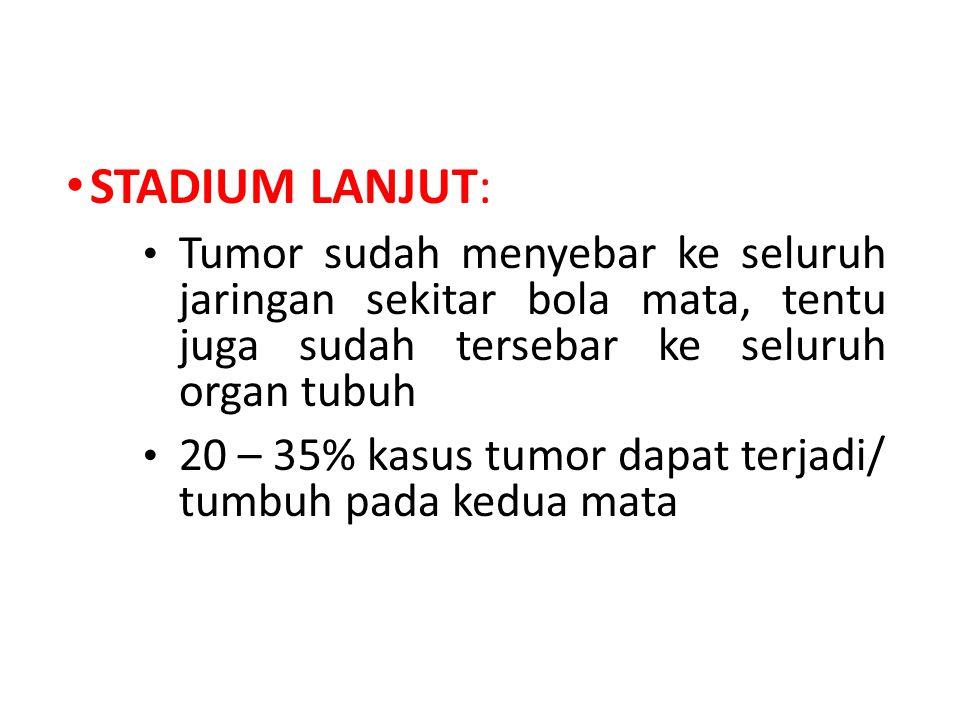 STADIUM LANJUT: Tumor sudah menyebar ke seluruh jaringan sekitar bola mata, tentu juga sudah tersebar ke seluruh organ tubuh 20 – 35% kasus tumor dapat terjadi/ tumbuh pada kedua mata