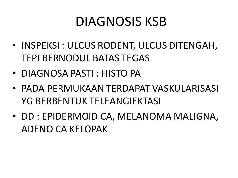 DIAGNOSIS KSB INSPEKSI : ULCUS RODENT, ULCUS DITENGAH, TEPI BERNODUL BATAS TEGAS DIAGNOSA PASTI : HISTO PA PADA PERMUKAAN TERDAPAT VASKULARISASI YG BERBENTUK TELEANGIEKTASI DD : EPIDERMOID CA, MELANOMA MALIGNA, ADENO CA KELOPAK