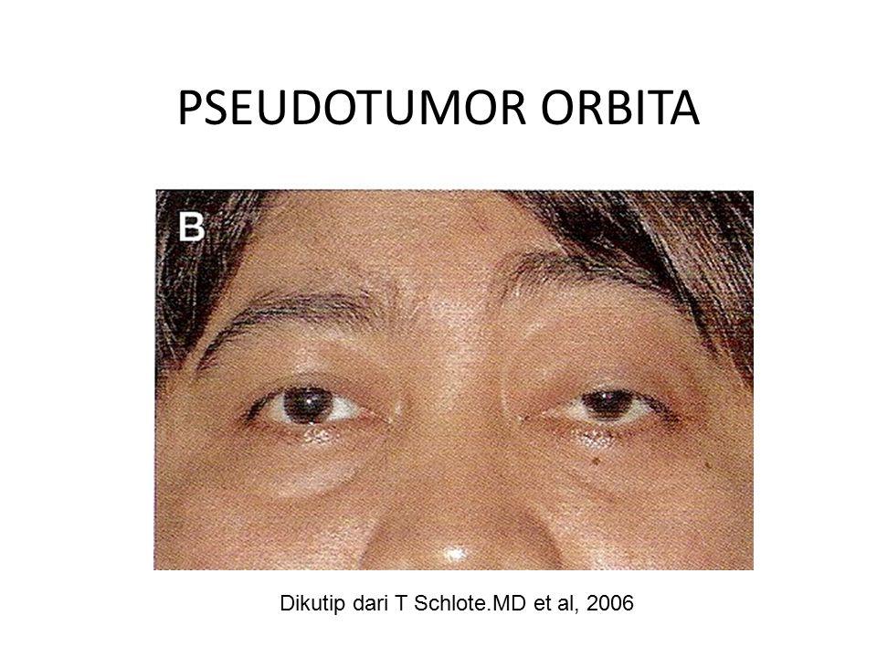 PSEUDOTUMOR ORBITA Dikutip dari T Schlote.MD et al, 2006