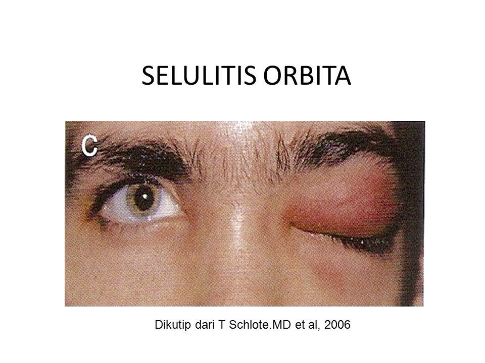 SELULITIS ORBITA Dikutip dari T Schlote.MD et al, 2006