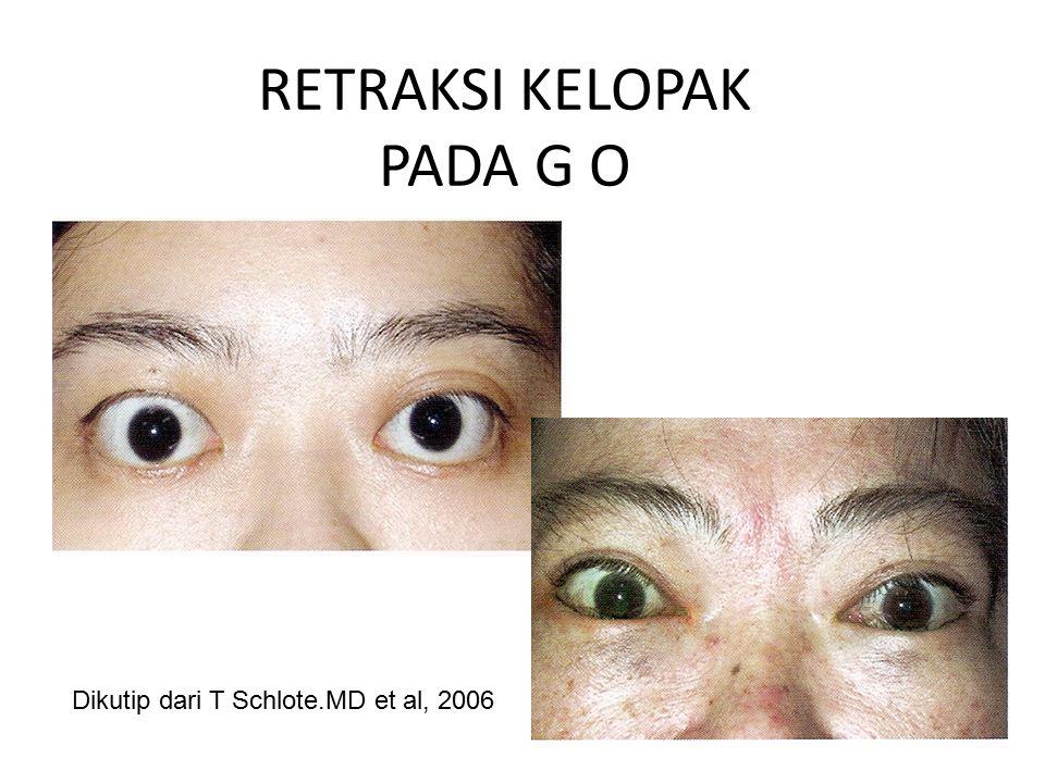 RETRAKSI KELOPAK PADA G O Dikutip dari T Schlote.MD et al, 2006