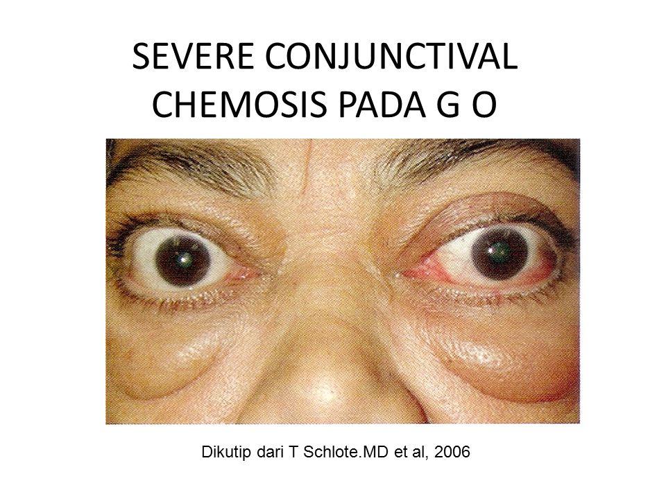 SEVERE CONJUNCTIVAL CHEMOSIS PADA G O Dikutip dari T Schlote.MD et al, 2006