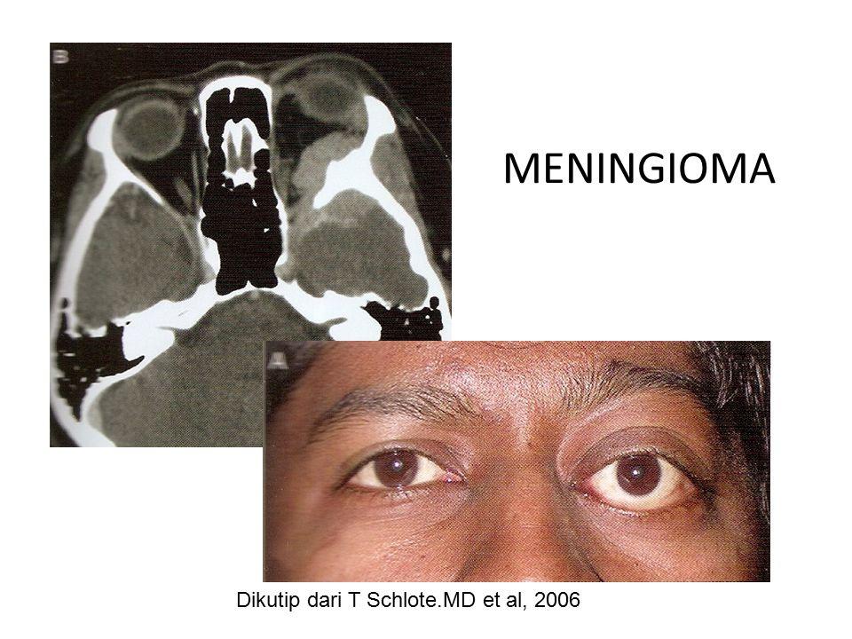 MENINGIOMA Dikutip dari T Schlote.MD et al, 2006