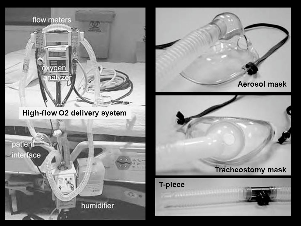 High-flow O2 delivery system Aerosol mask Tracheostomy mask T-piece