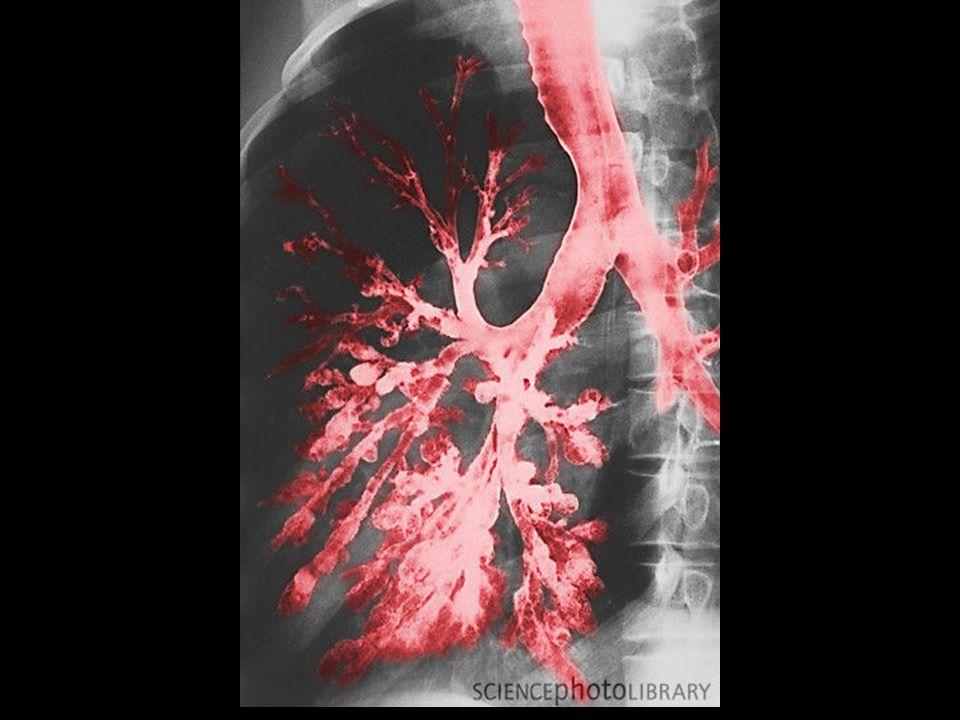 Kriteria batuk darah masif Berbagai literatur bervariasi  Bleeding rate 100 – 1000/24 jam 1.Hemoptisis ringan : < 25 cc/24 jam 2.Hemoptisis berat : 25 – 250 cc/24 jam 3.Hemoptisis masif