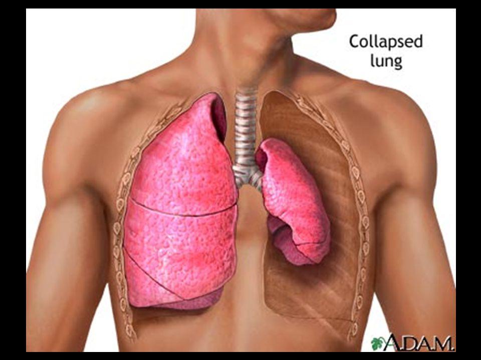Udara  Ruptur / kebocoran dinding alveol  Intertisial paru  Septa lobuler Perifer Sentral   Bleb Pneumomediastinum  Distensi  Pecah  Pneumotoraks Patofisiologi