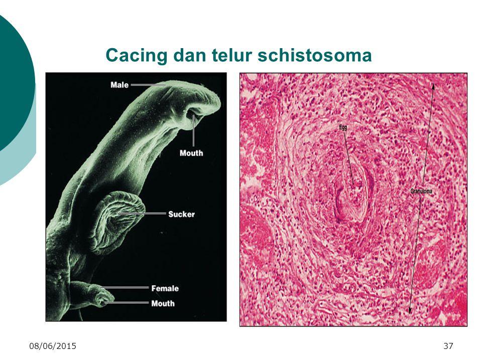 08/06/201537 Cacing dan telur schistosoma