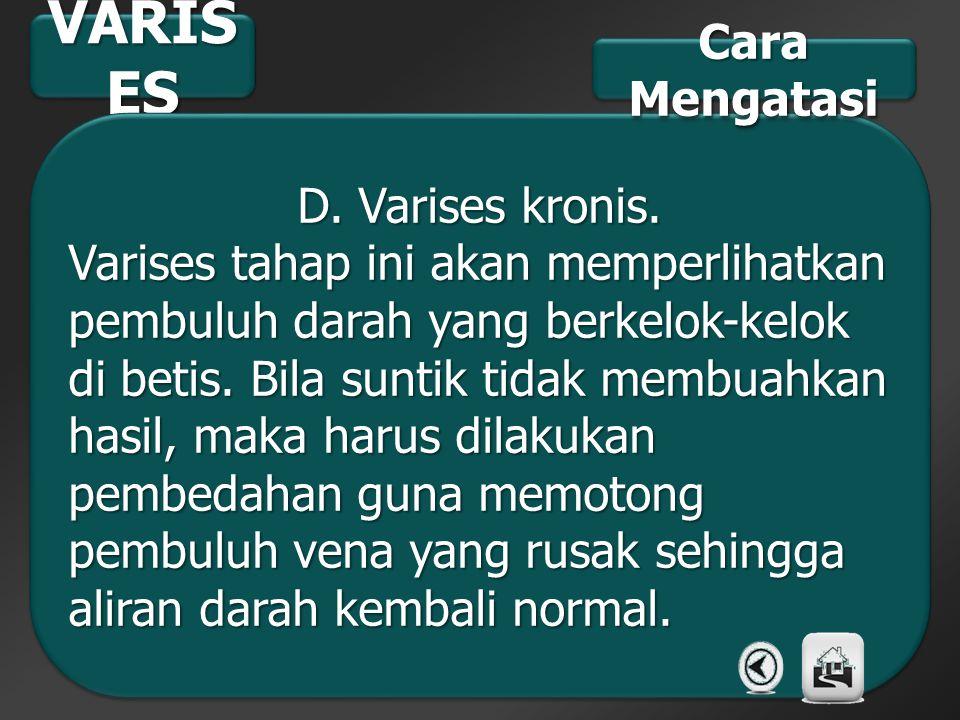 VARIS ES D. Varises kronis. Varises tahap ini akan memperlihatkan pembuluh darah yang berkelok-kelok di betis. Bila suntik tidak membuahkan hasil, mak