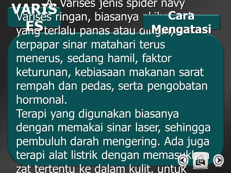 VARIS ES A. Varises jenis spider navy Varises ringan, biasanya akibat suhu yang terlalu panas atau dingin, terpapar sinar matahari terus menerus, seda