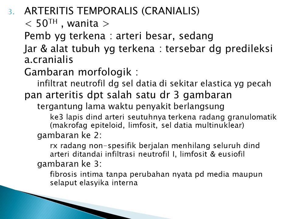3. ARTERITIS TEMPORALIS (CRANIALIS) Pemb yg terkena : arteri besar, sedang Jar & alat tubuh yg terkena : tersebar dg predileksi a.cranialis Gambaran m