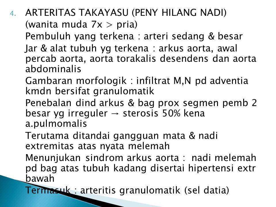 4. ARTERITAS TAKAYASU (PENY HILANG NADI) (wanita muda 7x > pria) Pembuluh yang terkena : arteri sedang & besar Jar & alat tubuh yg terkena : arkus aor
