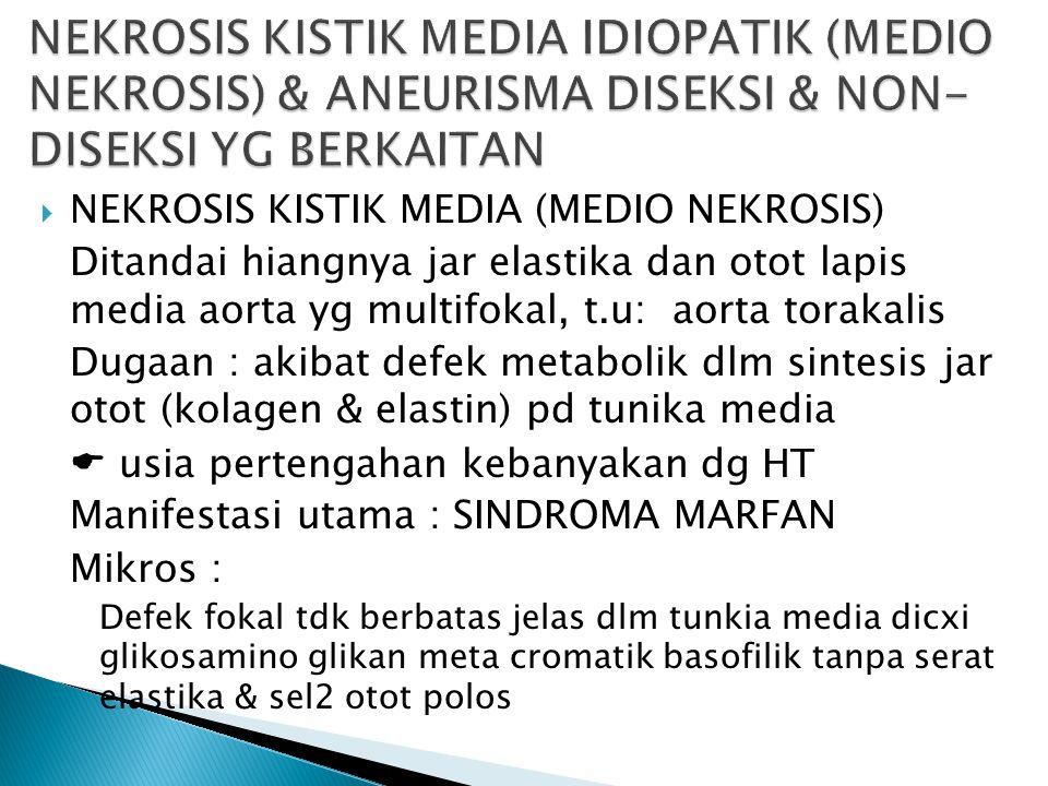  NEKROSIS KISTIK MEDIA (MEDIO NEKROSIS) Ditandai hiangnya jar elastika dan otot lapis media aorta yg multifokal, t.u: aorta torakalis Dugaan : akibat defek metabolik dlm sintesis jar otot (kolagen & elastin) pd tunika media  usia pertengahan kebanyakan dg HT Manifestasi utama : SINDROMA MARFAN Mikros : Defek fokal tdk berbatas jelas dlm tunkia media dicxi glikosamino glikan meta cromatik basofilik tanpa serat elastika & sel2 otot polos