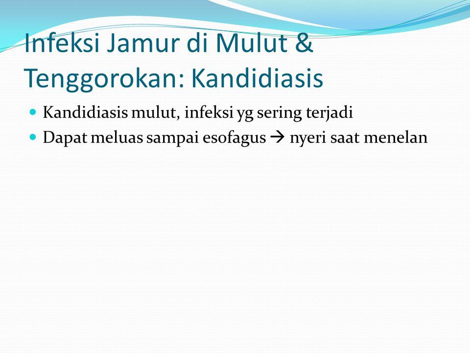 Infeksi Jamur di Mulut & Tenggorokan: Kandidiasis Kandidiasis mulut, infeksi yg sering terjadi Dapat meluas sampai esofagus  nyeri saat menelan